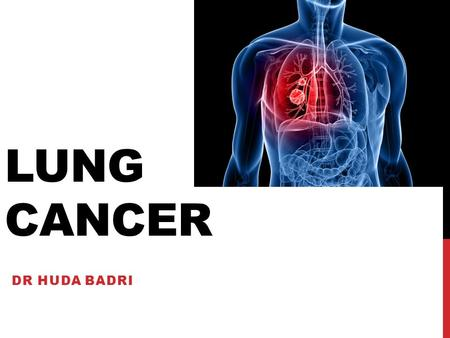 LUNG CANCER DR HUDA BADRI. OVERVIEW OF SESSION Learning objectives Quiz Tutorial on lung cancer and guidelines 15 minutes break Case studies 10minutes.