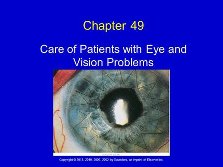 Copyright © 2013, 2010, 2006, 2002 by Saunders, an imprint of Elsevier Inc. Chapter 49 Care of Patients with Eye and Vision Problems.