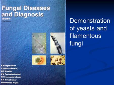 Demonstration of yeasts and filamentous fungi. Diagnosis Presumptive Presumptive Definitive Definitive.