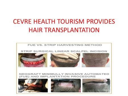 CEVRE HEALTH TOURISM PROVIDES HAIR TRANSPLANTATION.