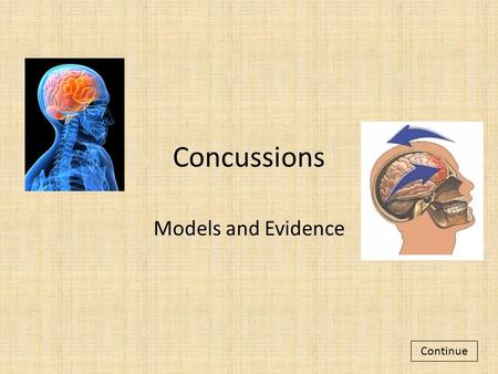 Concussions Models and Evidence Continue. With your partner, read through the slides to learn about concussions. Remember, read carefully so you are able.