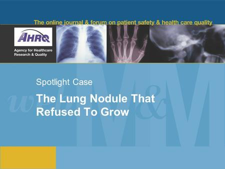 Spotlight Case The Lung Nodule That Refused To Grow.