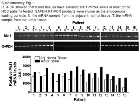 Supplementary Fig. 1. RT-PCR showed that tumor tissues have elevated Mst1 mRNA levels in most of the HCC patients tested. GAPDH RT-PCR products were shown.