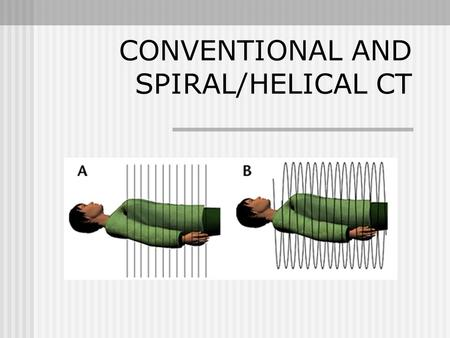 CONVENTIONAL AND SPIRAL/HELICAL CT. CONVENTIONAL SLICE-BY SLICE DATA ACQUSITION.