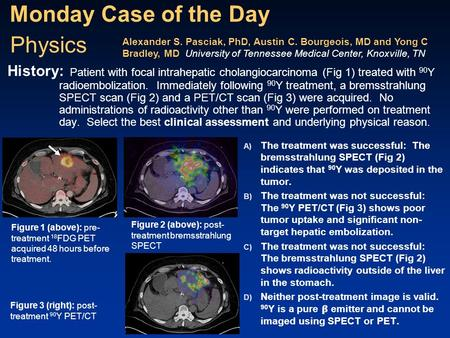 Monday Case of the Day A) The treatment was successful: The bremsstrahlung SPECT (Fig 2) indicates that 90 Y was deposited in the tumor. B) The treatment.