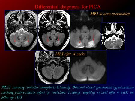 Differential diagnosis for PICA
