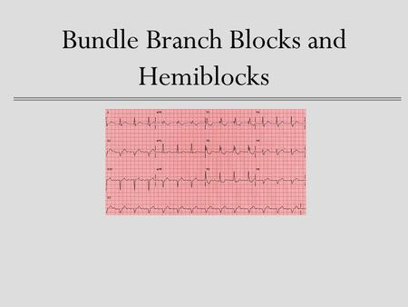 Bundle Branch Blocks and Hemiblocks