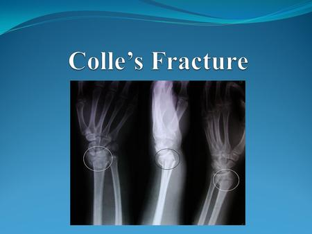 Colle's Fracture.