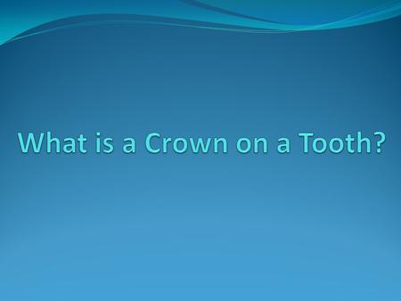 "When Dr. Madhuri Vanama of Discovery Dental recommends a tooth crown, many patients feel confused about what this means. ""What is a crown on a tooth?"""