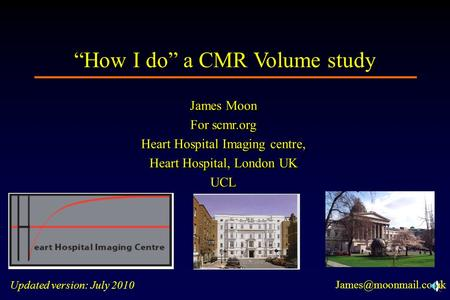"""How I do"" a CMR Volume study"