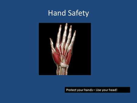 Hand Safety Protect your hands – Use your head! Hand Injuries A hand injury can ruin your day or your life Hand injuries include cuts, burns, fractures,