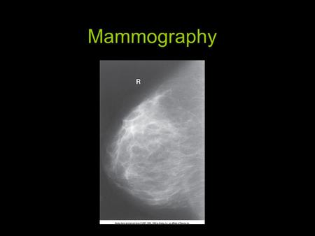 Mammography. Introduction and History Breast cancer is 2nd only to lung cancer as cause of death in women –Very treatable with early detection! 1st innovation.