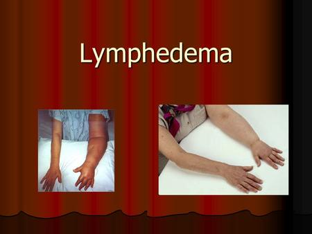 Lymphedema. Arm Edema in Breast Cancer Patients patient is caused by interruption of the axillary lymphatic system by surgery or radiation therapy, which.