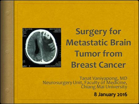 8 January 2016. Introduction  10-30% of breast cancer  brain metastasis  incidence (longer survival / new imaging modalities)