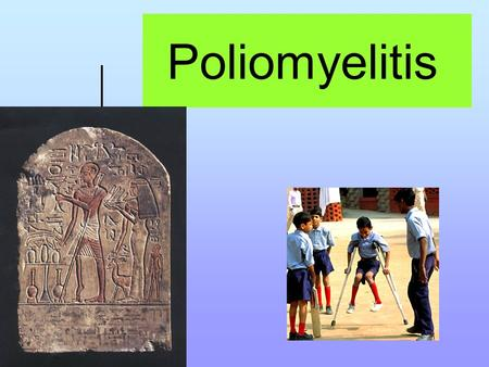 Poliomyelitis. Instructional Objectives: At the end of the lecture the student would be able to: 1-Demonstrate the main clinical characteristics of poliomyelitis.