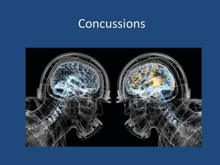 Concussions. You only get one brain. Concussion symptoms may appear mild, but this injury can lead to significant, life-long impairment affecting a person's.