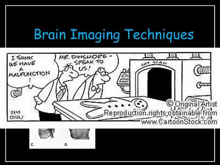 Brain Imaging Techniques The Case of Phineas Gage - lesioning.