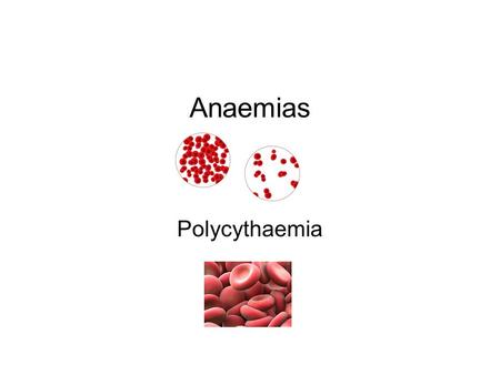 Anaemias Polycythaemia. PATHOPHYSIOLOGY OF ANAEMIAS Anaemia is defined as a condition in which the hemoglobin concentration is below the normal range,