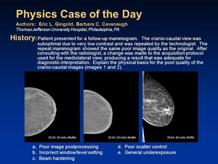 Physics Case of the Day History : Patient presented for a follow-up mammogram. The cranio-caudal view was suboptimal due to very low contrast and was repeated.