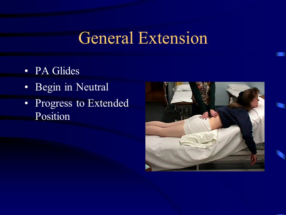 General Extension for Home Force Movement at Specific Levels Modified Press Up Exercise Extension at L3 Towel Roll to flex at L4/5