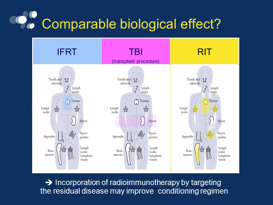 Use of radiolabeled immunotherapy in myeloablative concepts + ASCT Principles: 90 Y-ibritumomab tiuxetan dose escalation (escalation Z) 90 Y-ibritumomab tiuxetan + high-dose chemotherapy (eg Z-BEAM) 90 Y-ibritumomab tiuxetan dose escalation instead of TBI (eg escalation Z-Etoposide/Cy) 90 Y-ibritumomab tiuxetan dose escalation + high-dose chemotherapy (eg escalation Z-BEAM) ZBEAM Etoposide/Cy BEAM Z Z Z