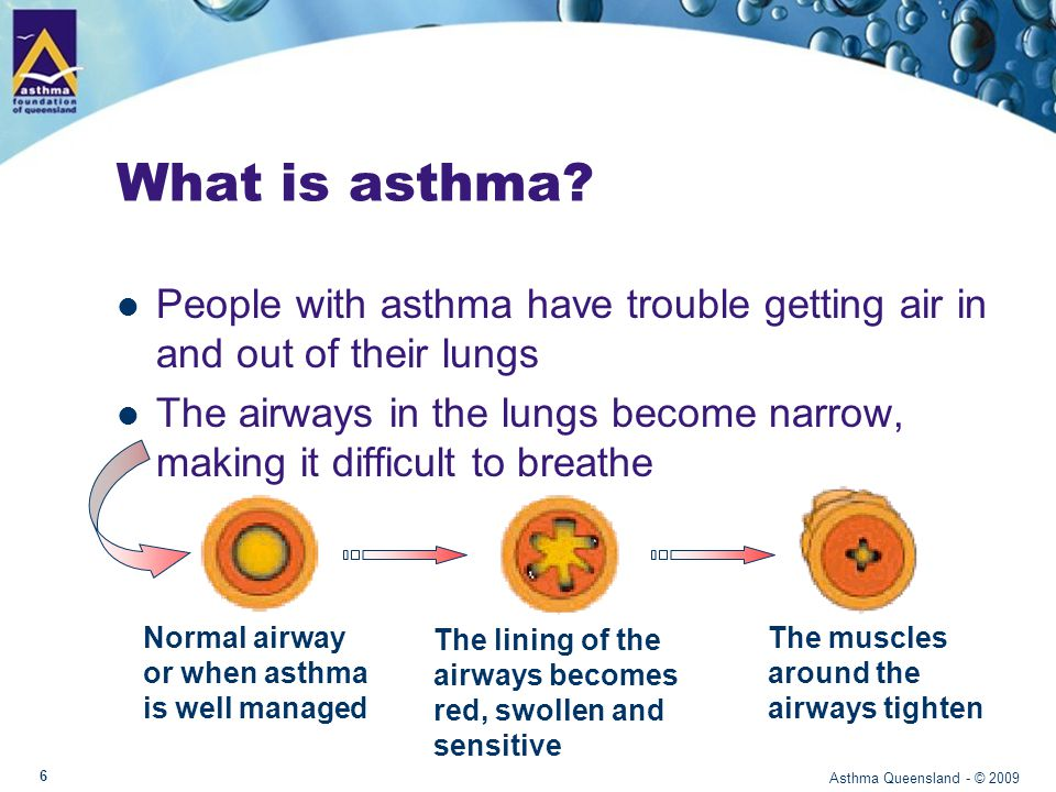 Airways Normal airway or asthma well managed – pink – open – muscles relax Asthma Queensland - © 2009 7