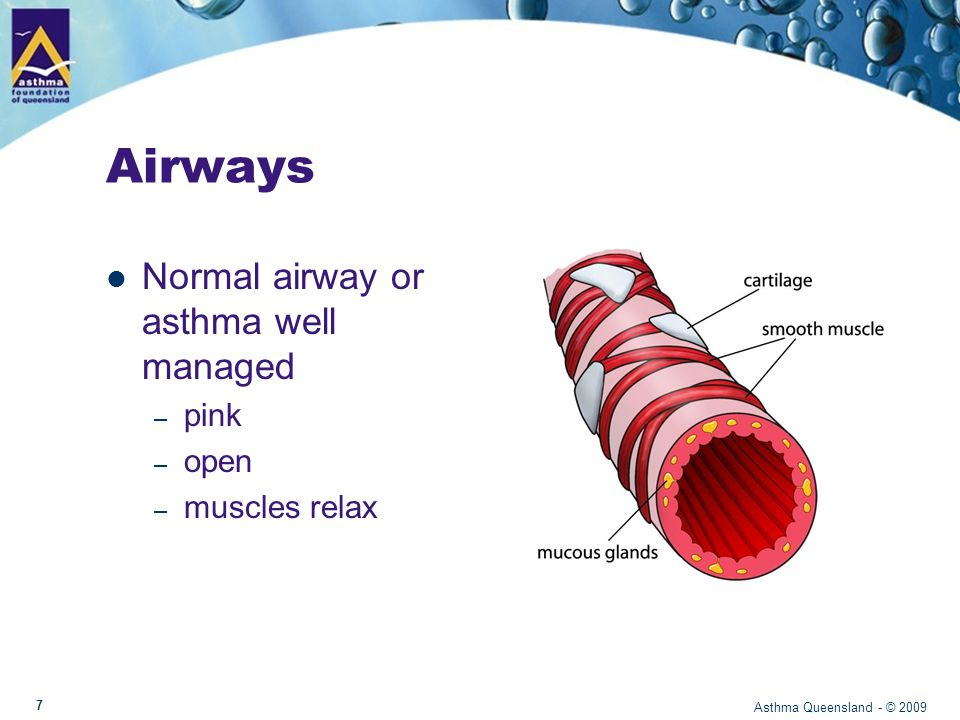 Airways during asthma The lining of the airway becomes red, swollen and sensitive and may produce extra mucus The muscles around the airway tighten Asthma Queensland - © 2009 8