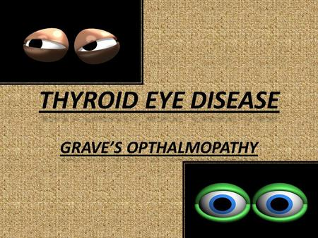 THYROID EYE DISEASE GRAVE'S OPTHALMOPATHY. INTRODUCTION.