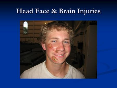 Head Face & Brain Injuries. Head Injures Head injury-damage to the scalp, skull or brain due to a blow Head injury-damage to the scalp, skull or brain.