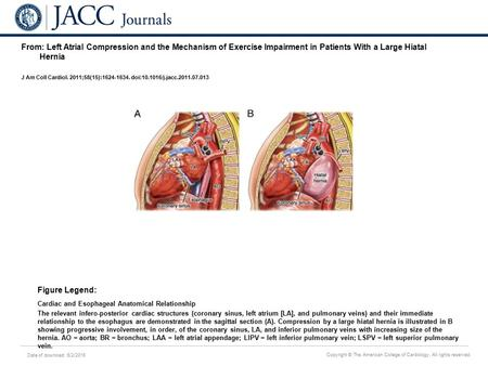 Date of download: 6/2/2016 Copyright © The American College of Cardiology. All rights reserved. From: Left Atrial Compression and the Mechanism of Exercise.