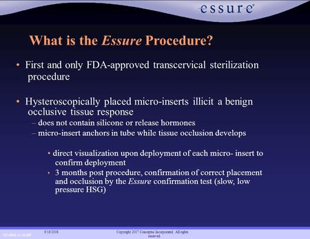CC-0944 11.16.04F Copyright 2007 Conceptus Incorporated. All rights reserved. 9/16/2008 What is the Essure Procedure? First and only FDA-approved transcervical.