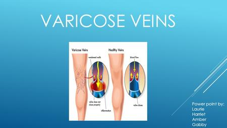VARICOSE VEINS Power point by: Laurie Harriet Amber Gabby.