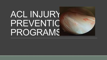 ACL INJURY PREVENTION PROGRAMS. Gregory M. Mathien, M.D. Knoxville Orthopaedic Clinic.