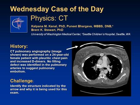 Wednesday Case of the Day History: CT pulmonary angiography (image shown) was performed on a 24-year-old female patient with pleuritic chest pain and increased.