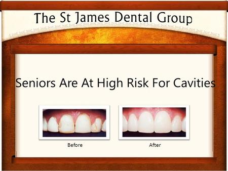Seniors Are At High Risk For Cavities BeforeAfter.