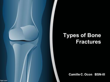 Types of Bone Fractures Camille C. Ocon BSN-III. What is a bone fracture?  a medical condition wherein the continuity of the bone is broken.  occurs.