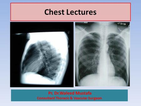 Chest Lectures Pr. Dr.Waleed Mustafa Consultant Thoracic & Vascular Surgeon.