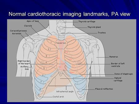 Normal cardiothoracic imaging landmarks, PA view.