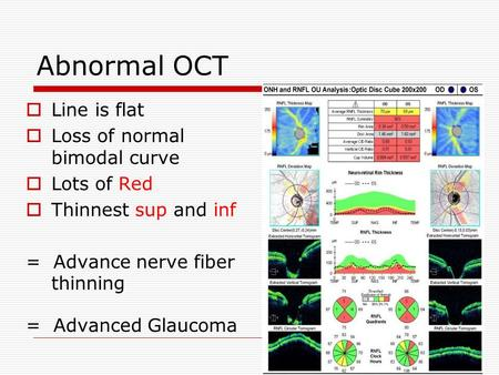 Abnormal OCT  Line is flat  Loss of normal bimodal curve  Lots of Red  Thinnest sup and inf = Advance nerve fiber thinning = Advanced Glaucoma.