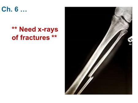 Ch. 6 … ** Need x-rays of fractures **. 6.4 … E. Bone Remodeling - When: - 5-10% annually in an adult -Function: 1) 2) 3) - Importance of Calcium  Nerve.