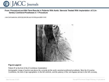 Date of download: 6/7/2016 Copyright © The American College of Cardiology. All rights reserved. From: Procedural and Mid-Term Results in Patients With.
