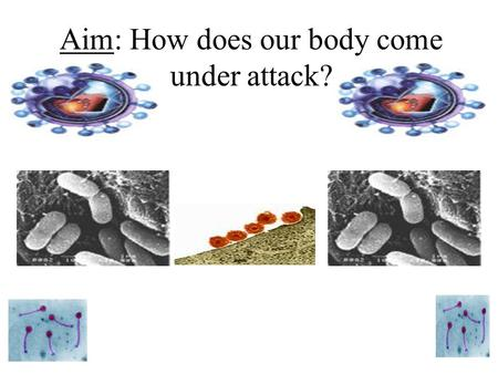 Aim: How does our body come under attack? What is wrong? Disease is any condition that prevents the body from working as it should. As a result the body.