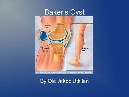 Baker's Cyst By Ole Jakob Utkilen. Overview  Named after Dr. William Morrant Baker  Most common popliteal mass, with a prevalence of 4,5%  Synovial.