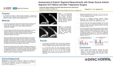 Assessment of Anterior Segment Measurements with Swept Source Anterior Segment OCT Before and After Trabectome Surgery Handan Akil, Mayss Al-Sheikh, SriniVas.