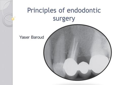 Principles of endodontic surgery Yaser Baroud. Endodontic surgery ((Endodontic surgery is the management or prevention of periradicular pathosis by a.