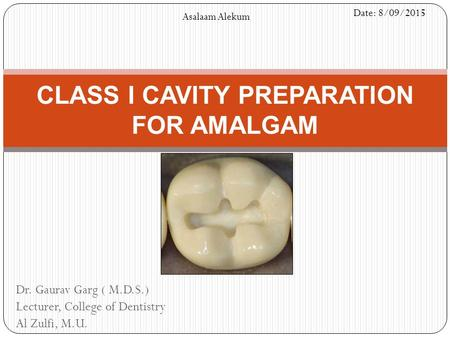 CLASS I CAVITY PREPARATION FOR AMALGAM