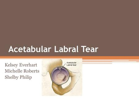 Acetabular Labral Tear Kelsey Everhart Michelle Roberts Shelby Philip.