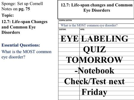 Sponge: Set up Cornell Notes on pg. 75 Topic: 12.7: Life-span Changes and Common Eye Disorders Essential Questions: What is the MOST common eye disorder?