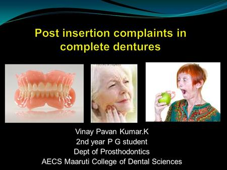 Vinay Pavan Kumar.K 2nd year P G student Dept of Prosthodontics AECS Maaruti College of Dental Sciences.
