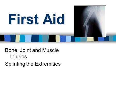 First Aid Bone, Joint and Muscle Injuries Splinting the Extremities.